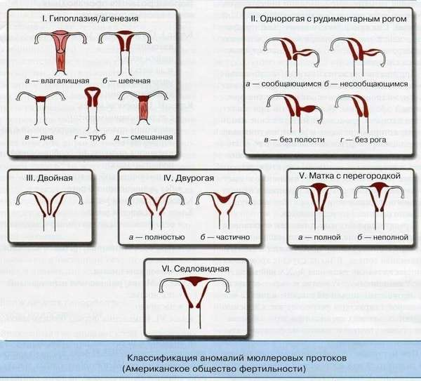 Двурогая матка может быть обусловлена ведением нездорового образа жизни на протяжении длительного периода времени