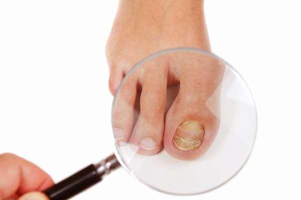 Грибок ногтей при беременности необходимо лечить сразу, поскольку это заболевание является опасным для здоровья