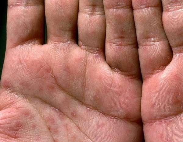 Среди основных признаков сифилиса стоит отметить сыпь на теле