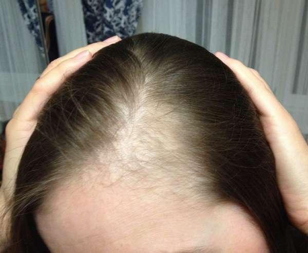 Выпадение волос после родов может быть обусловлено гормональным сбоем или стрессом