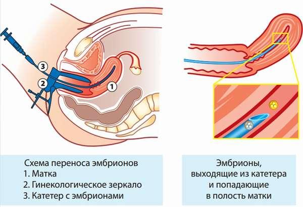 После переноса эмбриона следует отказаться от тяжелых физических нагрузок