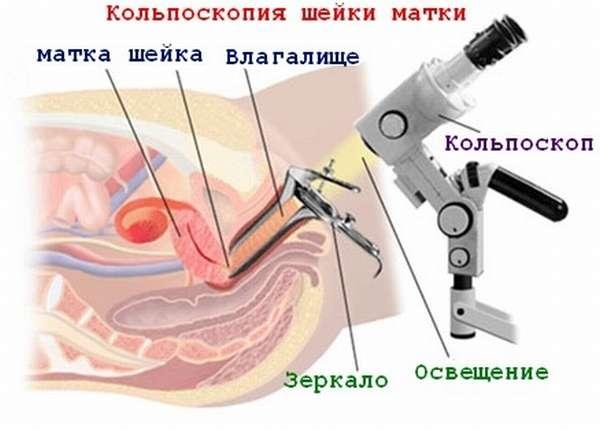 Гинекологический осмотр с использованием специального микроскопа называется кольпоскопия