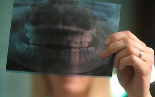 Рентген зубов при беременности
