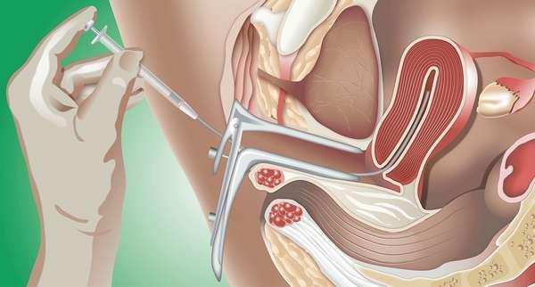 Современные технологии позволяют выполнять искусственное оплодотворение в краткие сроки