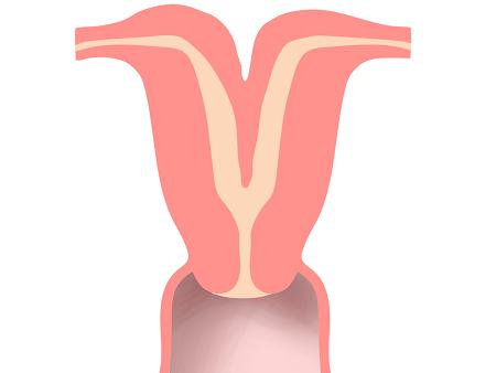 Чтобы выявить двурогую матку, следует обратиться к врачу и пройти назначенные исследования