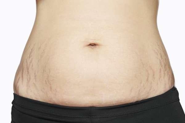 Причинами растяжек после родов может стать быстрый рост живота и груди во время беременности