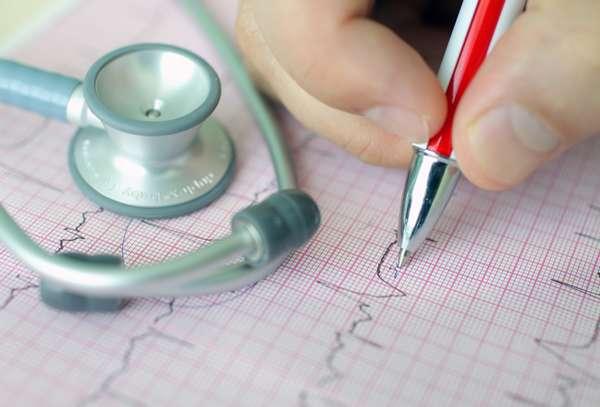 Диагностировать аритмию может квалифицированный специалист с помощью специального оборудования