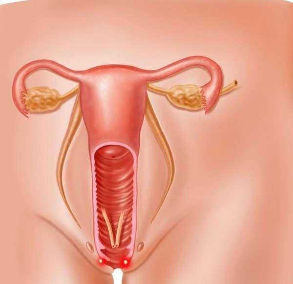 Незащищнный секс во время беременности