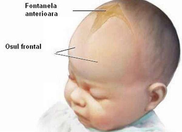 Родничок у новорожденных может отличаться по форме в зависимости от физиологических особенностей ребенка
