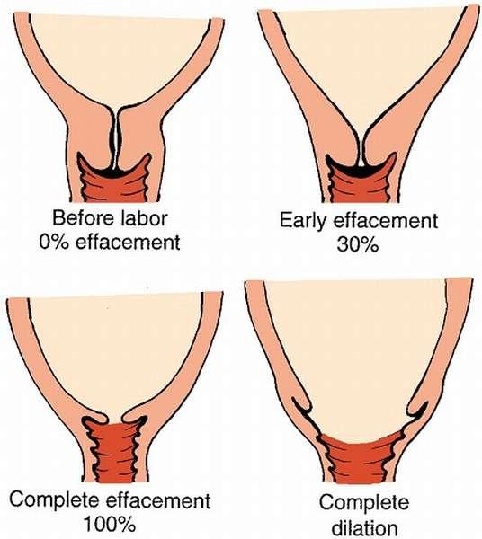 Благодаря современным технологиям можно легко диагностировать короткую шейку матки