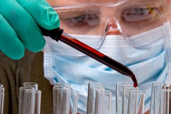 Ознакомиться с тем, что такое фибриноген и почему он выше нормы, можно у врача